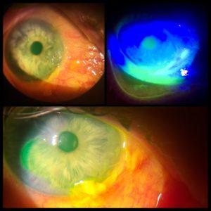 poleptání oka
