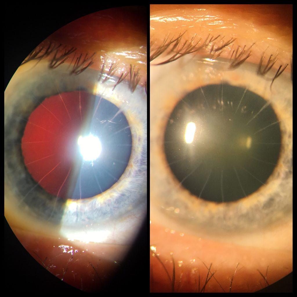 Radiální keratotomie (nářezy rohovky) - touto metodou se řešila krátkozrakost dříve.
