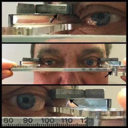 Exophthalmus levého oka, Hertelův exophthalmometr