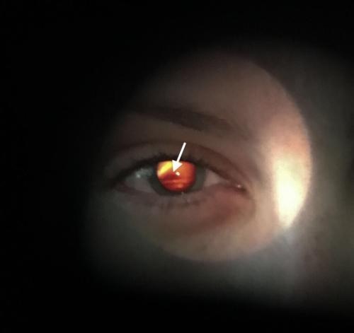 Keratokonus - abnormální červený reflex