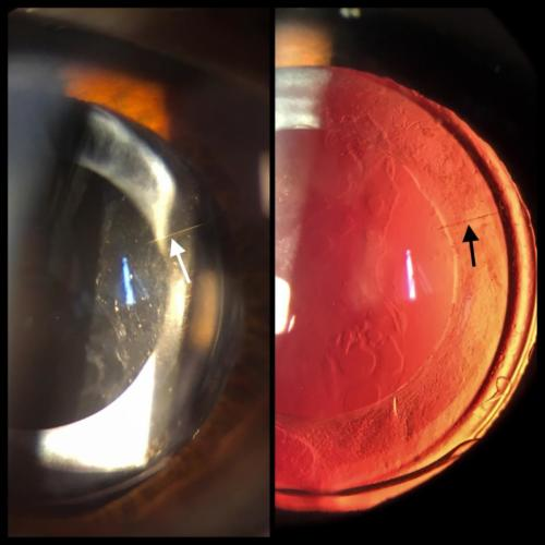Artificial intraocular lens in the posterior chamber - toric