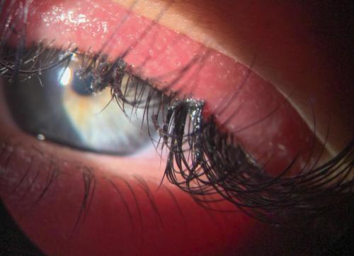 Umělé řasy - alergická/toxická reakce