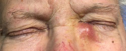 Dacryocystitis - zánět slzného vaku