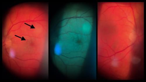 Uzávěr centrální retinální arterie