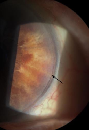 Rohovka po refrakční operaci - limbální relaxační incize