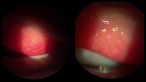 Keratoconjunctivitis - vernal