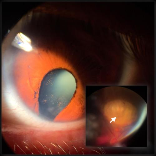 Coloboma - iris and uvea