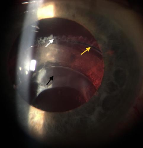 Artificial intraocular lens - dislocation in the pseudoexfoliation syndrome