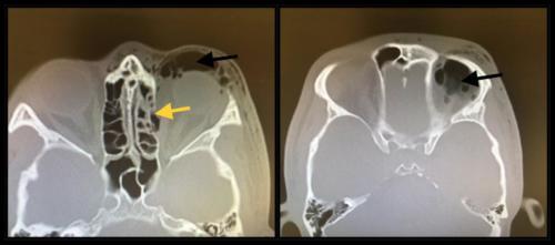 Zlomenina očnice - mediální stěny s podkožním emfyzémem a pneumoorbitou