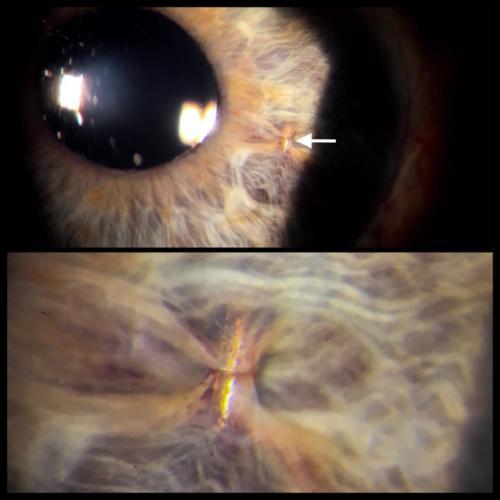 Umělá nitrooční čočka - iris claw - retropupilárně