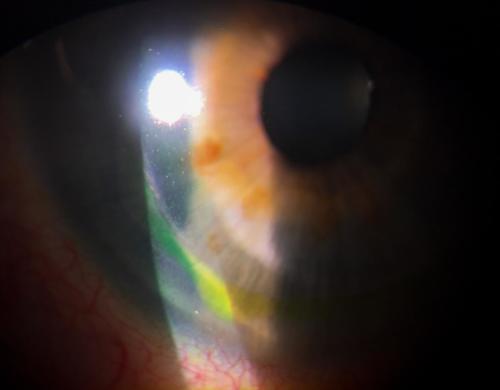 Cornea - after refractive surgery - LASIK - flap dislocation