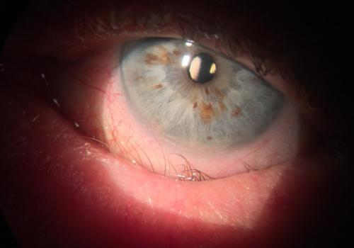 Entropion of the lower eyelid