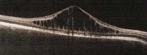 X vázaná juvenilní retinoschíza (OCT oblasti fovei)