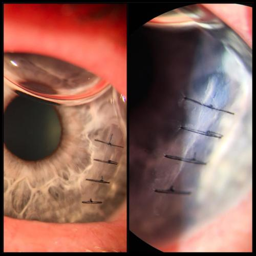 Penetrating trauma of the cornea - after suture
