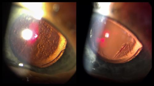 Cataract - secondary - posterior capsule opacification (PCO) - Elschnig pearls - Nd YAG capsulotomy