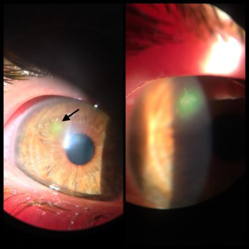 Contact lens - associated keratitis