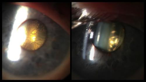 Cataract - gas - after pars plana vitrectomy