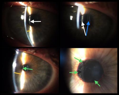 Pupilární blok - fibrinovou membránou po operaci šedého zákalu