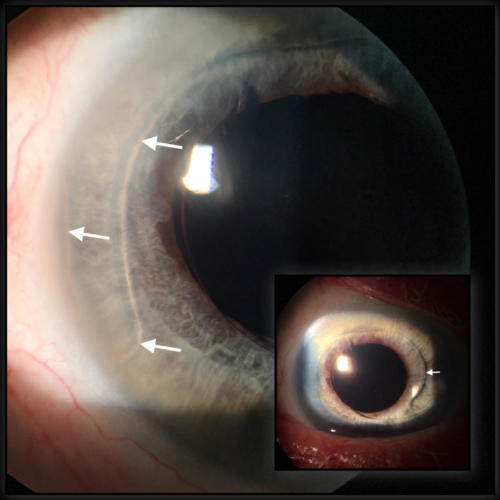 Artificial intraocular lens in the anterior chamber - fixated in the iridocorneal angle by haptics