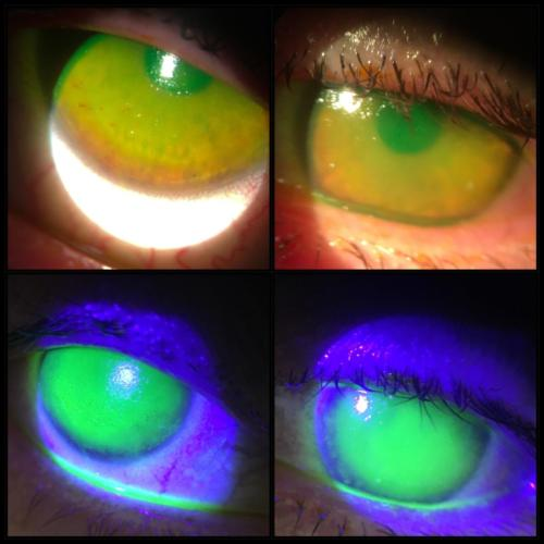 Cornea - deepitelisation - the patient accidentaly stored her contact lenses in the make-up remover instead of the contact lens solution
