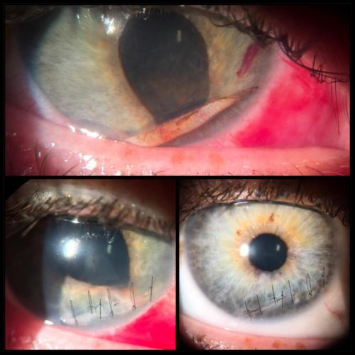 Penetrating trauma of the cornea (2)