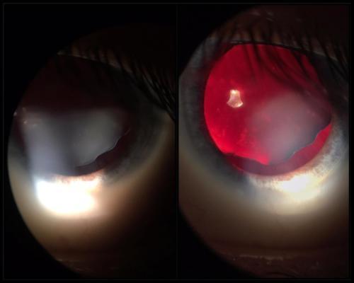 Dislokace čočky u člověka s podezřením na Marfanův syndrom