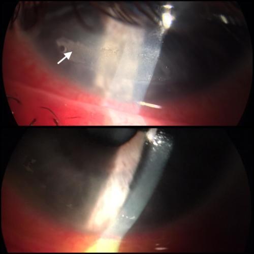 Defekt rohovky vzniklý po delším umělém spánku na ARO - před a po léčbě