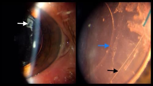 Zbytky čočkových hmot po operaci katarakty komplikované rupturou zadního pouzdra.