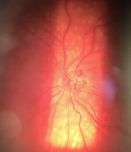 The optic nerve disc collaterals