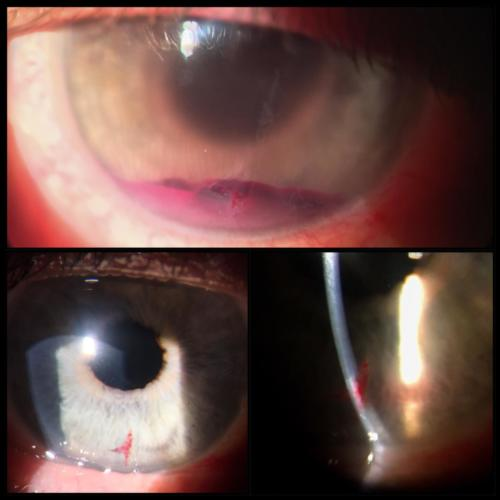 Penetrating trauma of the cornea