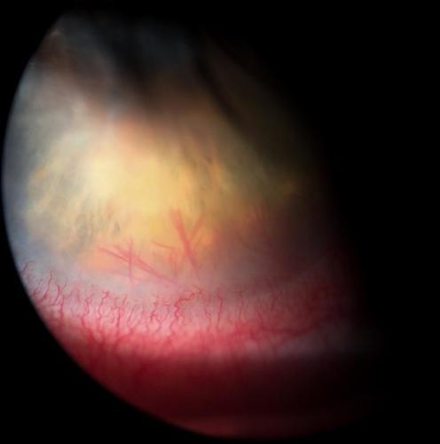 Vaskularizace rohovky - hluboká - při keratitidě