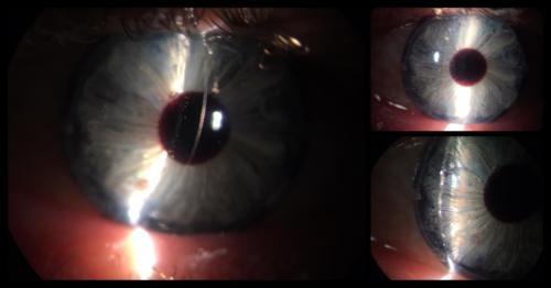 Oční protéza -skleněná (původ Česká Republika)