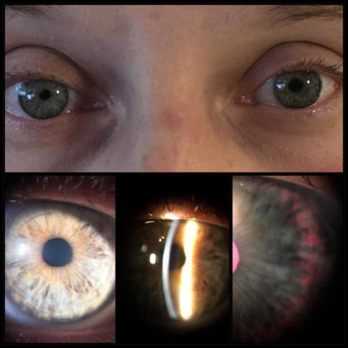Syndrom pigmentové disperze